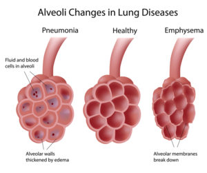 Drawing of how the air sacs in the lungs are affected by pneumonia or emphysema.