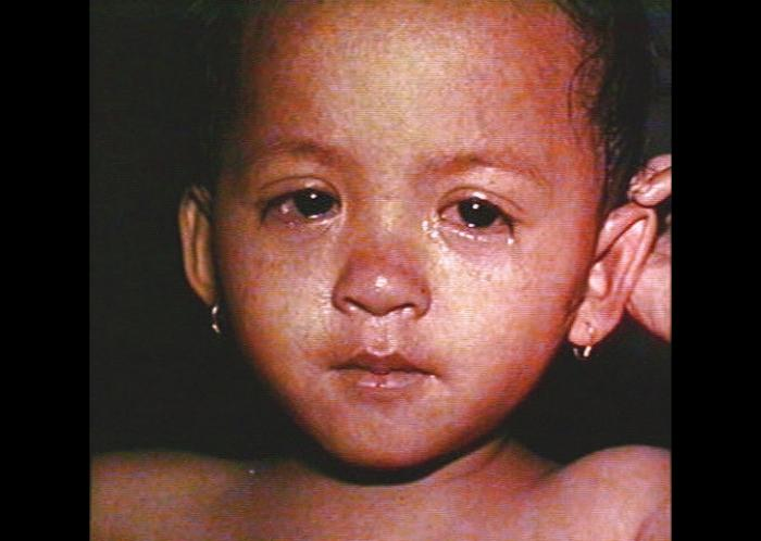 a child with measles
